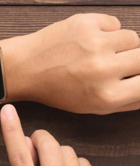 Apple-watch-paa-afbetaling